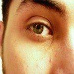 305593_memos_eye